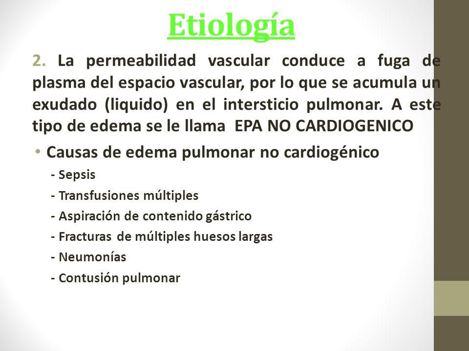 Etiología 2.