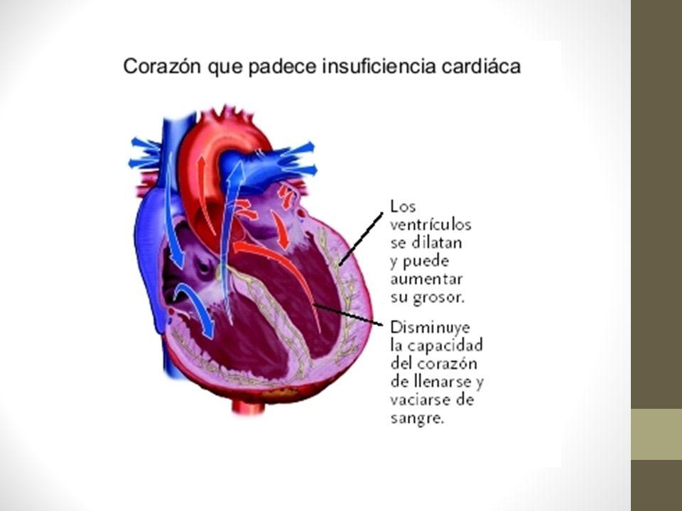 Fase Inicial: Aumento de ventrículo izquierdo.
