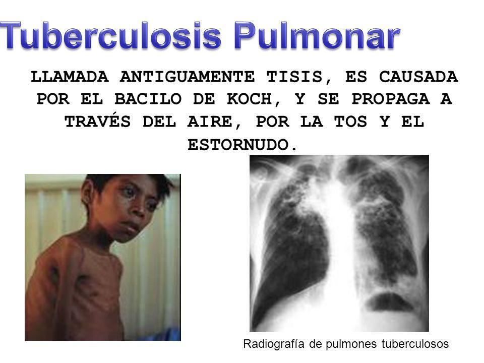 LLAMADA ANTIGUAMENTE TISIS, ES CAUSADA POR EL BACILO DE KOCH, Y SE PROPAGA A TRAVÉS DEL AIRE, POR LA TOS Y EL ESTORNUDO. Radiografía de pulmones tuber