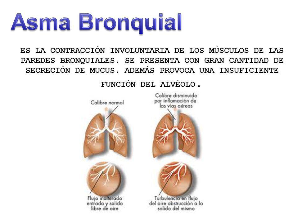ES LA CONTRACCIÓN INVOLUNTARIA DE LOS MÚSCULOS DE LAS PAREDES BRONQUIALES. SE PRESENTA CON GRAN CANTIDAD DE SECRECIÓN DE MUCUS. ADEMÁS PROVOCA UNA INS