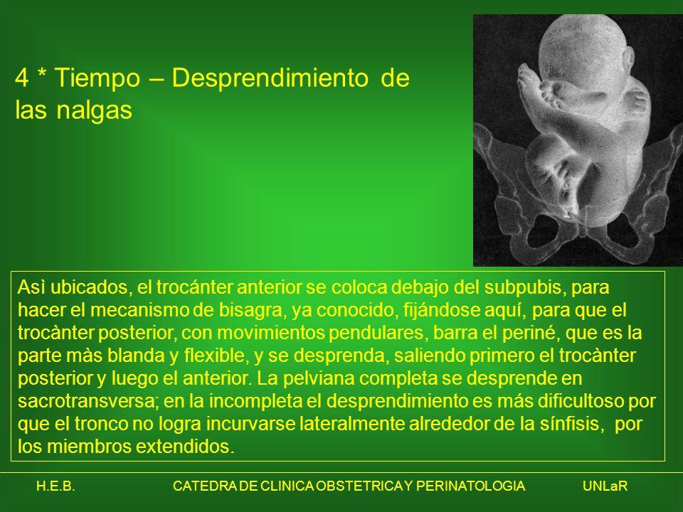 H.E.B.CATEDRA DE CLINICA OBSTETRICA Y PERINATOLOGIAUNLaR 4 * Tiempo – Desprendimiento de las nalgas Asì ubicados, el trocánter anterior se coloca deba