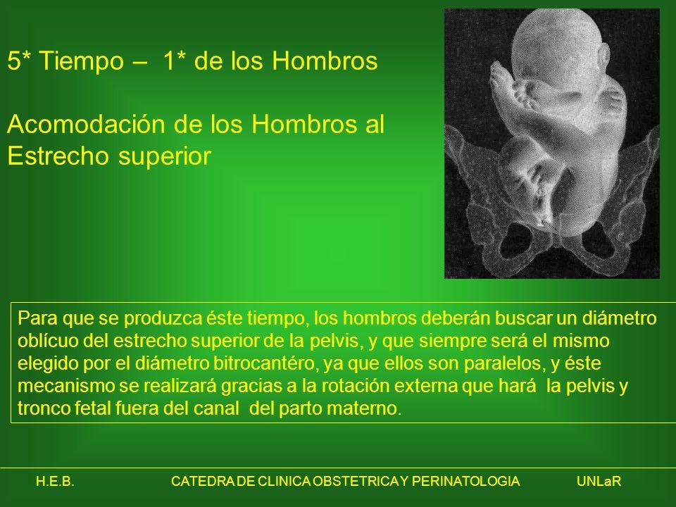 H.E.B.CATEDRA DE CLINICA OBSTETRICA Y PERINATOLOGIAUNLaR 5* Tiempo – 1* de los Hombros Acomodación de los Hombros al Estrecho superior Para que se pro