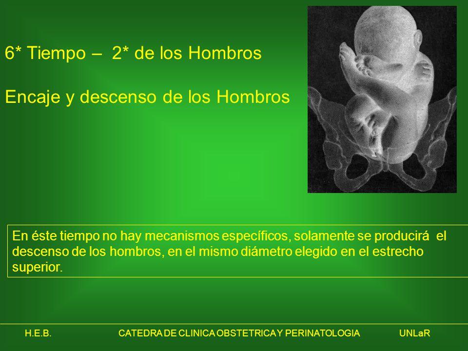 H.E.B.CATEDRA DE CLINICA OBSTETRICA Y PERINATOLOGIAUNLaR 6* Tiempo – 2* de los Hombros Encaje y descenso de los Hombros En éste tiempo no hay mecanism