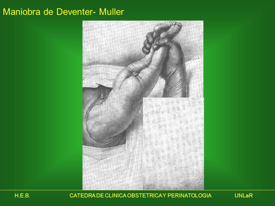 Maniobra de Deventer- Muller