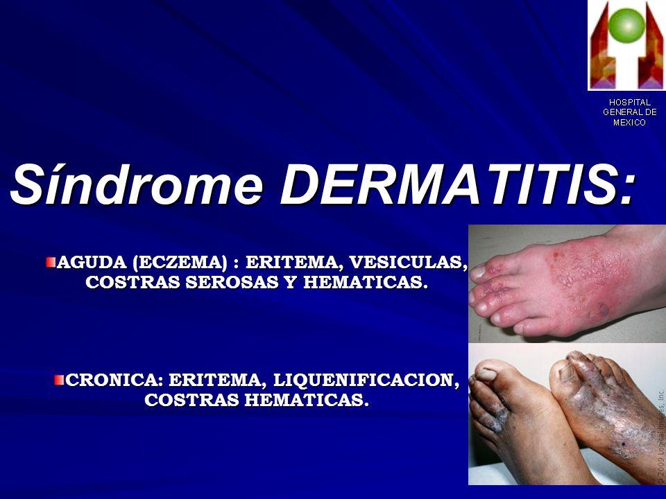 DERMATITIS DEL AREA DEL PAÑAL IRRITATIVA ALERGICA COMPLICADA CON CANDIDIASIS