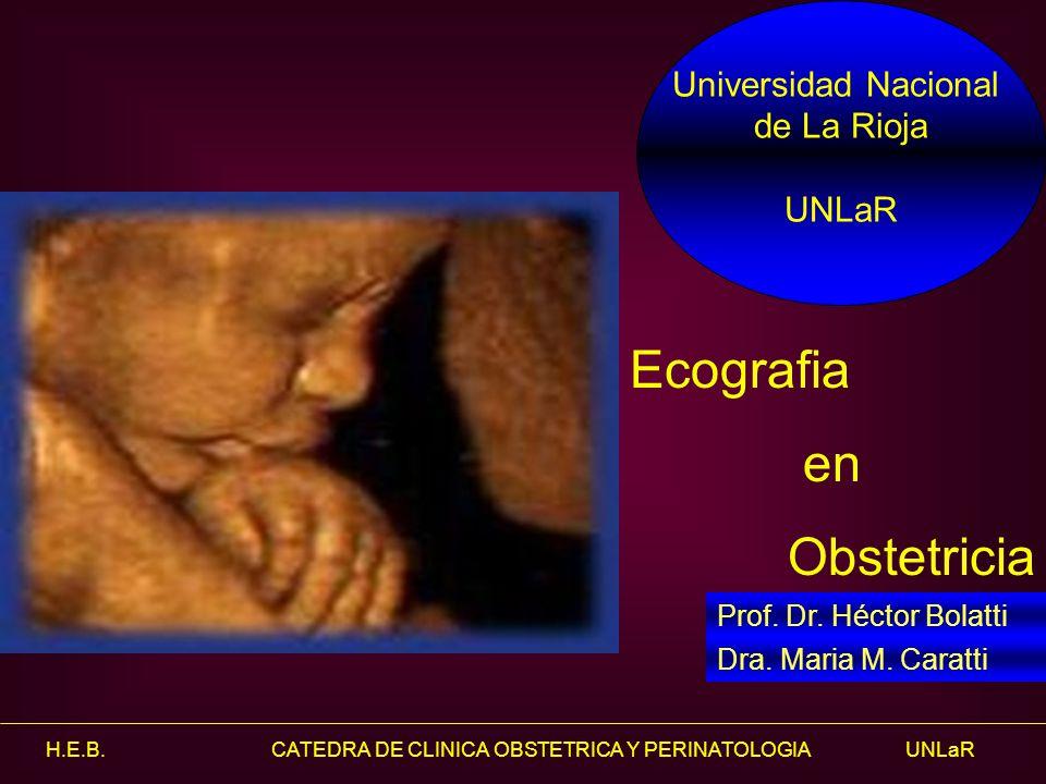 H.E.B. CATEDRA DE CLINICA OBSTETRICA Y PERINATOLOGIA UNLaR Canal neural.