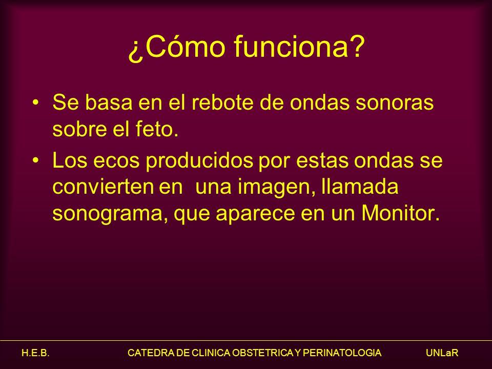 H.E.B.CATEDRA DE CLINICA OBSTETRICA Y PERINATOLOGIA UNLaR Hidronefrosis grave.