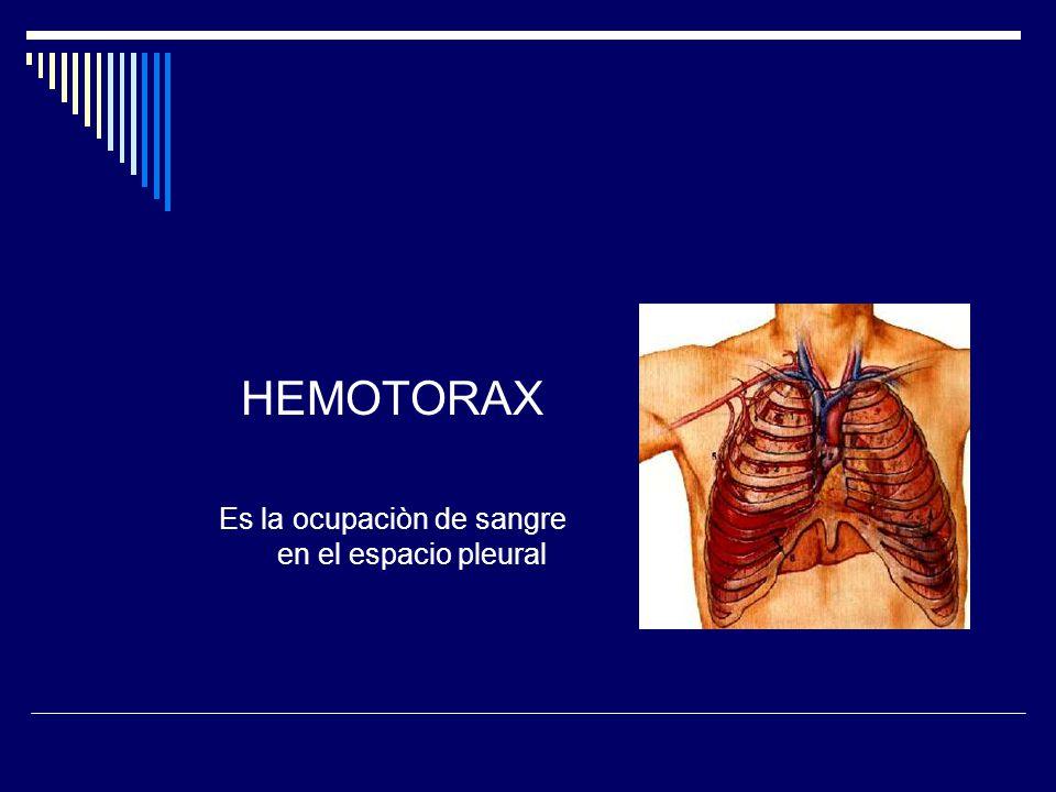 HEMOTORAX Es la ocupaciòn de sangre en el espacio pleural