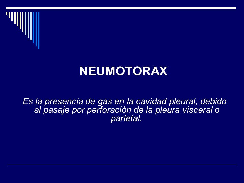 NEUMOTORAX Es la presencia de gas en la cavidad pleural, debido al pasaje por perforación de la pleura visceral o parietal.