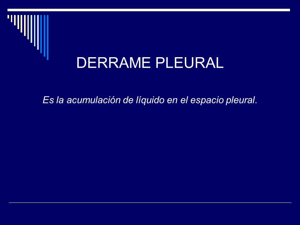 DERRAME PLEURAL Es la acumulación de líquido en el espacio pleural.