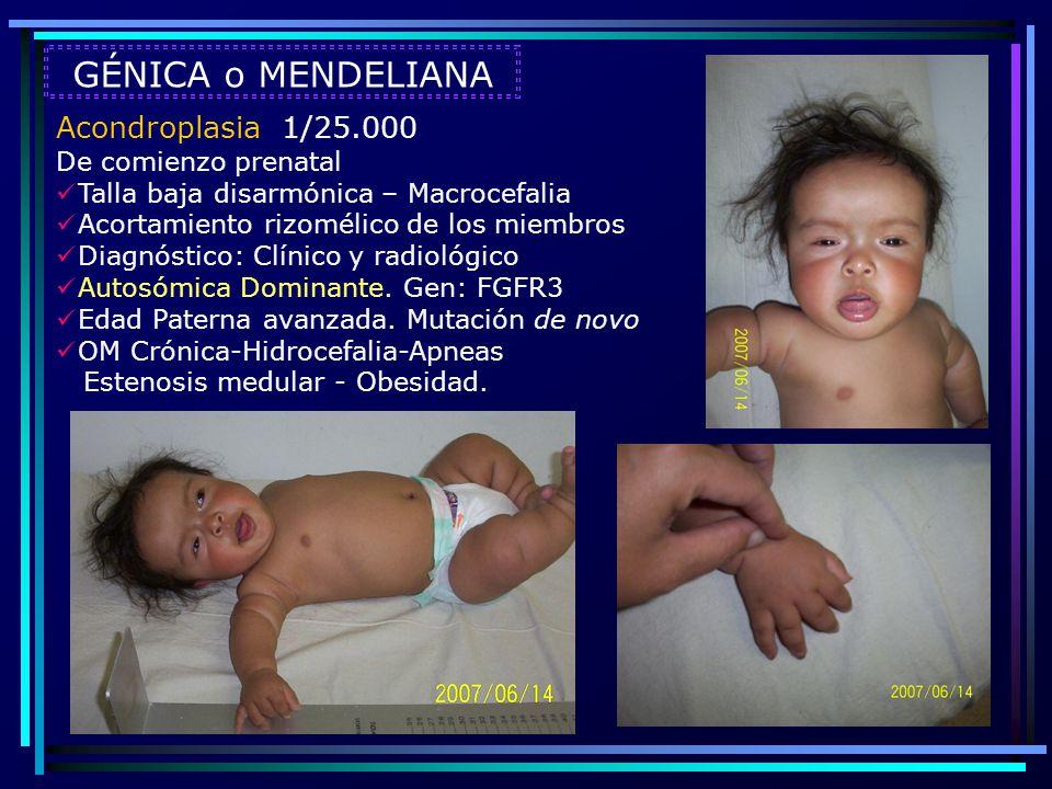 Acondroplasia 1/25.000 De comienzo prenatal Talla baja disarmónica – Macrocefalia Acortamiento rizomélico de los miembros Diagnóstico: Clínico y radio