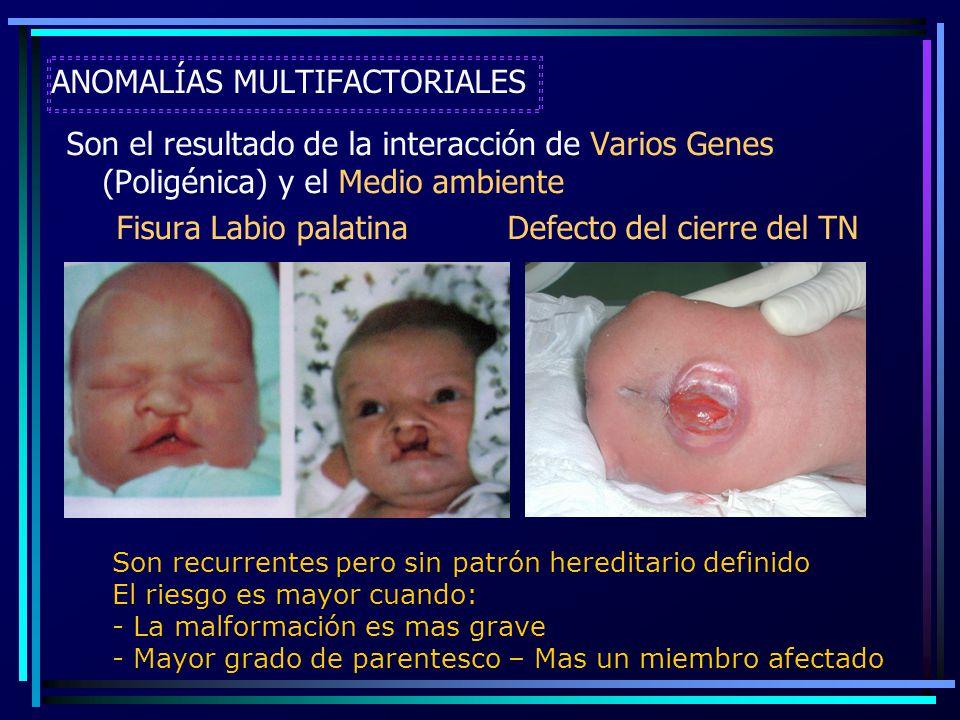 ANOMALÍAS MULTIFACTORIALES Son el resultado de la interacción de Varios Genes (Poligénica) y el Medio ambiente Fisura Labio palatina Defecto del cierr