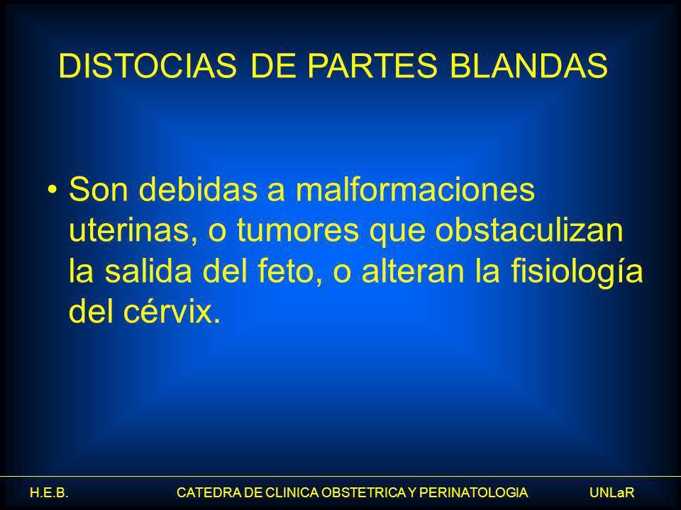 H.E.B. CATEDRA DE CLINICA OBSTETRICA Y PERINATOLOGIA UNLaR Son debidas a malformaciones uterinas, o tumores que obstaculizan la salida del feto, o alt