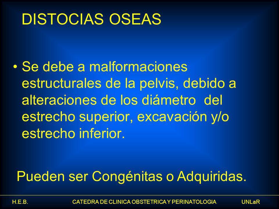 H.E.B. CATEDRA DE CLINICA OBSTETRICA Y PERINATOLOGIA UNLaR Se debe a malformaciones estructurales de la pelvis, debido a alteraciones de los diámetro