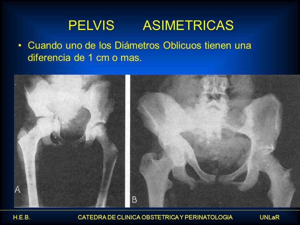 H.E.B. CATEDRA DE CLINICA OBSTETRICA Y PERINATOLOGIA UNLaR Cuando uno de los Diámetros Oblicuos tienen una diferencia de 1 cm o mas. PELVIS ASIMETRICA