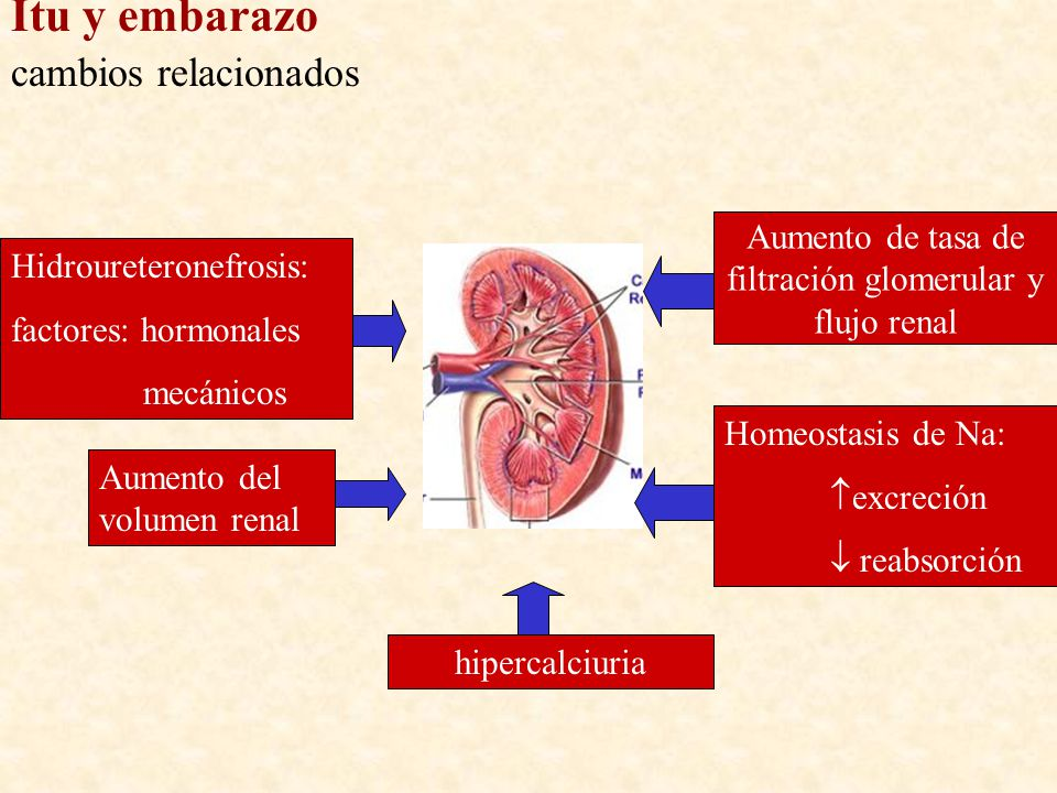 Hidroureteronefrosis: factores: hormonales mecánicos Aumento de tasa de filtración glomerular y flujo renal Aumento del volumen renal hipercalciuria H