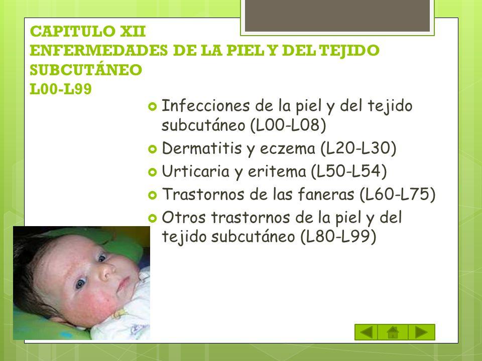 CAPITULO XII ENFERMEDADES DE LA PIEL Y DEL TEJIDO SUBCUTÁNEO L00-L99 Infecciones de la piel y del tejido subcutáneo (L00-L08) Dermatitis y eczema (L20