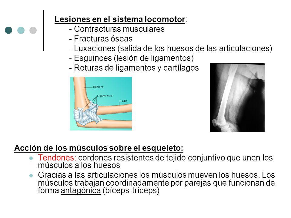 Acción de los músculos sobre el esqueleto: Tendones: cordones resistentes de tejido conjuntivo que unen los músculos a los huesos Gracias a las articu