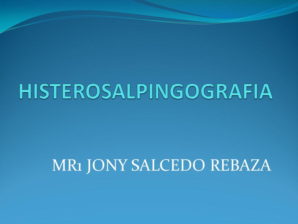 MR1 JONY SALCEDO REBAZA