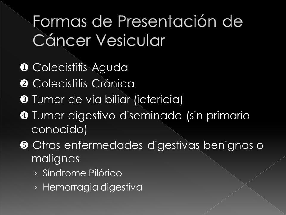 CANCER DE VESICULA BILIAR Y VIA BILIAR EXTRAHEPATICA DIAGNOSTICO Interrogatorio y cuadro Biometría hemática Transaminasas hepáticas 50% Fostatasa alcalina 50% y 90 % Bilirrubinas