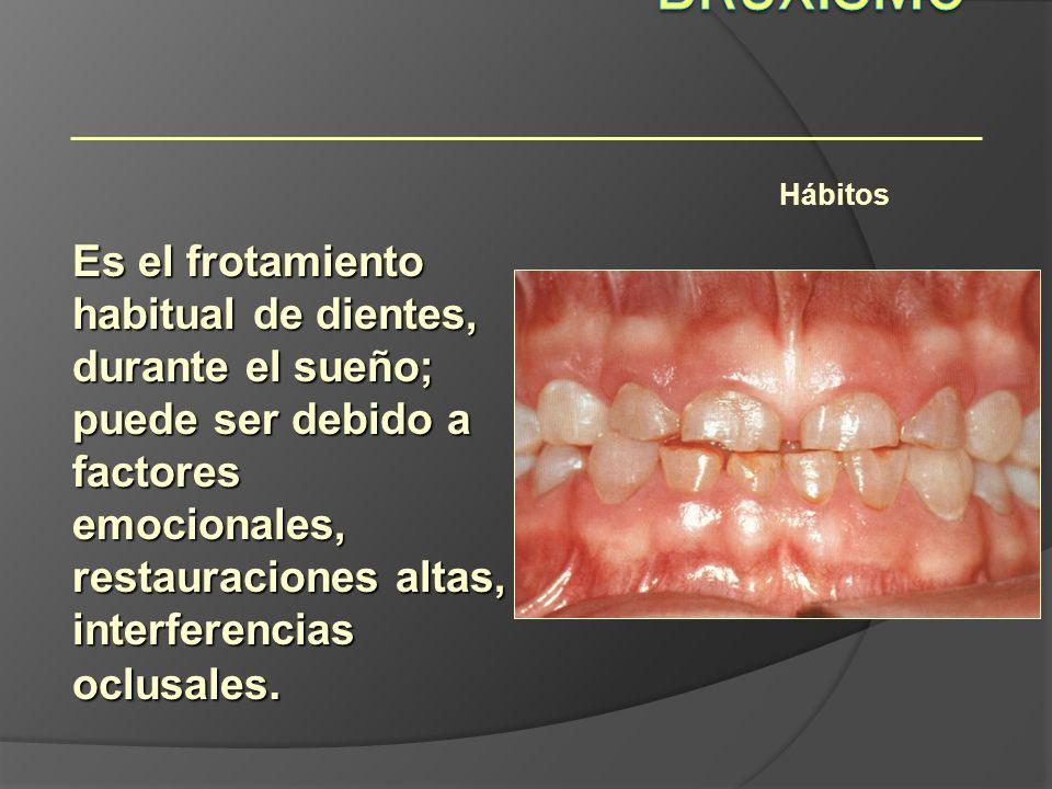 Hábitos Es el frotamiento habitual de dientes, durante el sueño; puede ser debido a factores emocionales, restauraciones altas, interferencias oclusal