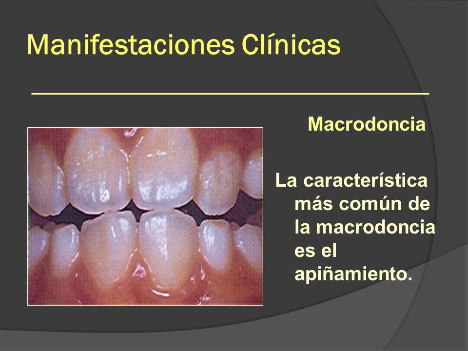 Manifestaciones Clínicas Macrodoncia La característica más común de la macrodoncia es el apiñamiento.