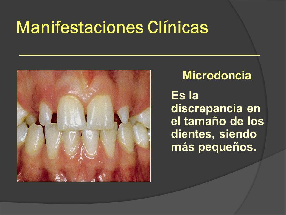 Manifestaciones Clínicas Microdoncia Es la discrepancia en el tamaño de los dientes, siendo más pequeños.