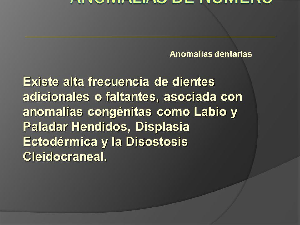 Anomalías dentarias Existe alta frecuencia de dientes adicionales o faltantes, asociada con anomalías congénitas como Labio y Paladar Hendidos, Displa