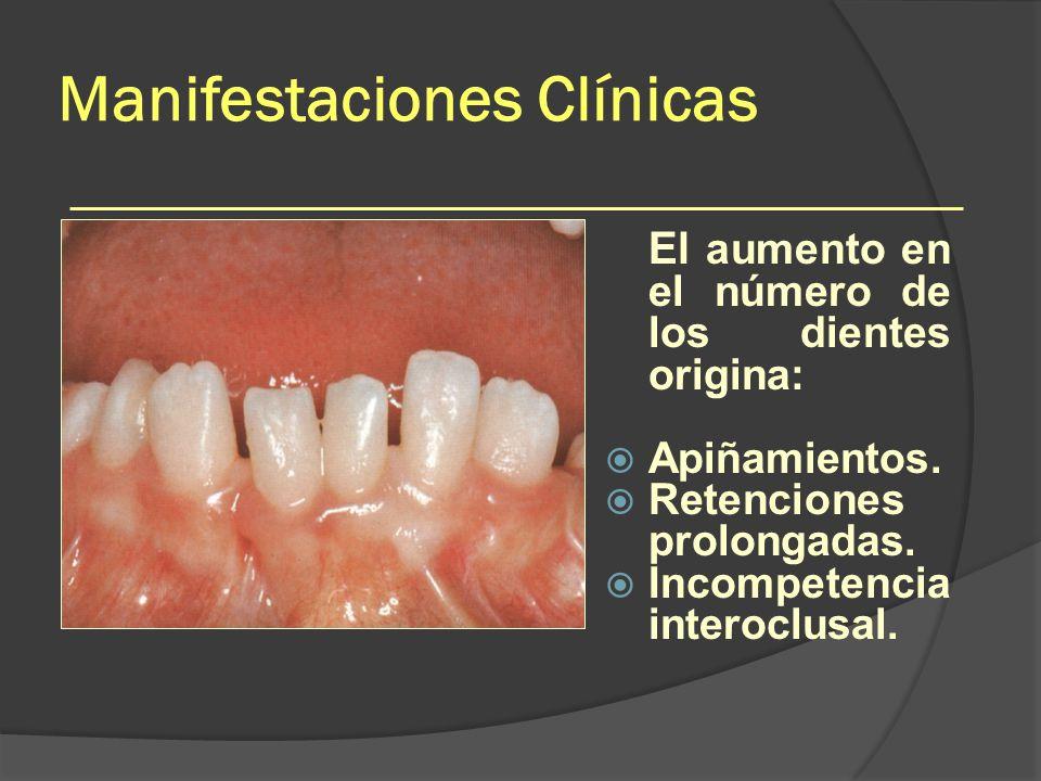Manifestaciones Clínicas El aumento en el número de los dientes origina: Apiñamientos. Retenciones prolongadas. Incompetencia interoclusal.