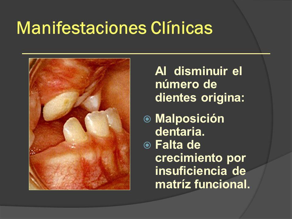Manifestaciones Clínicas Al disminuir el número de dientes origina: Malposición dentaria. Falta de crecimiento por insuficiencia de matríz funcional.