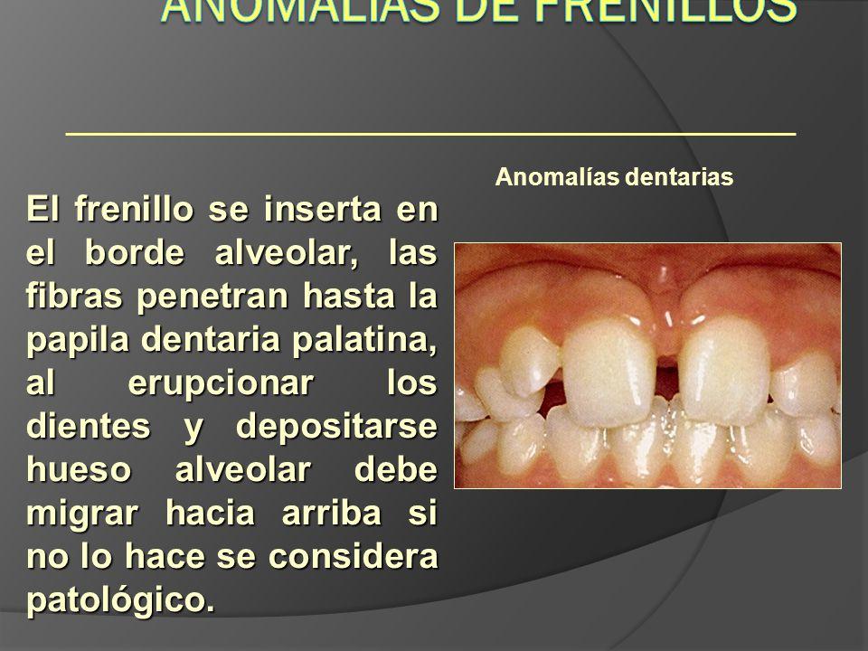 Anomalías dentarias El frenillo se inserta en el borde alveolar, las fibras penetran hasta la papila dentaria palatina, al erupcionar los dientes y de