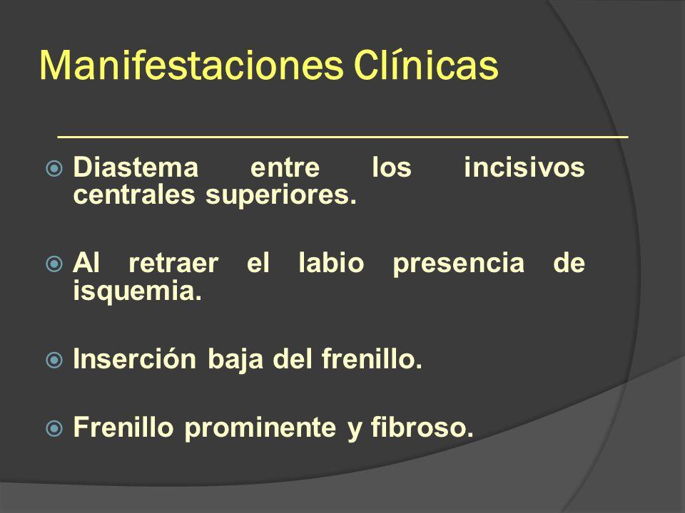 Manifestaciones Clínicas Diastema entre los incisivos centrales superiores. Al retraer el labio presencia de isquemia. Inserción baja del frenillo. Fr