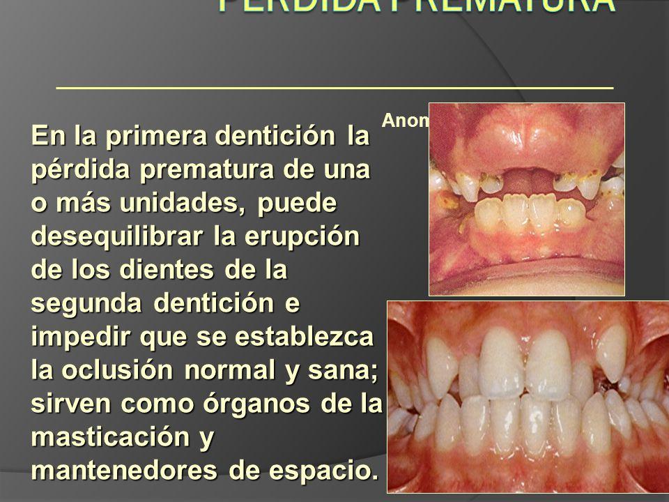 Anomalías dentarias En la primera dentición la pérdida prematura de una o más unidades, puede desequilibrar la erupción de los dientes de la segunda d