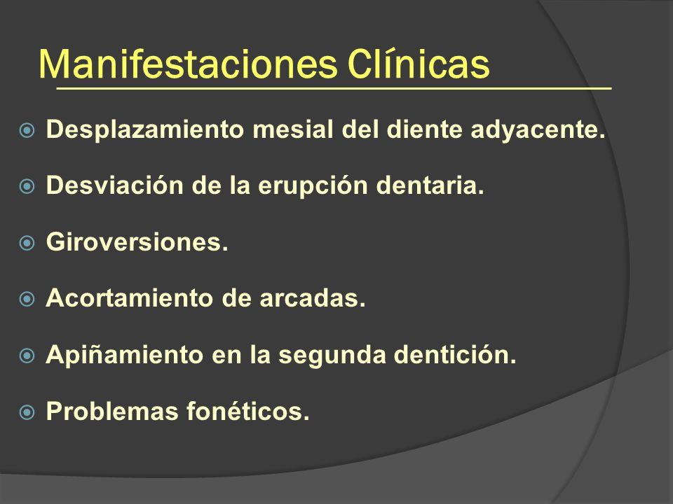 Manifestaciones Clínicas Desplazamiento mesial del diente adyacente. Desviación de la erupción dentaria. Giroversiones. Acortamiento de arcadas. Apiña