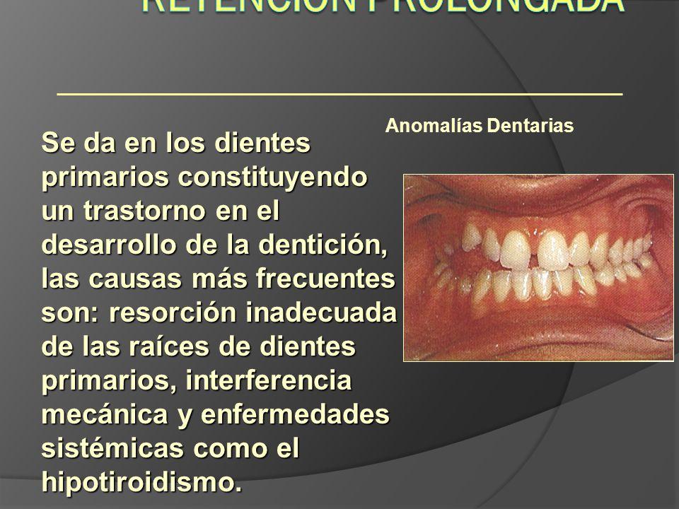 Anomalías Dentarias Se da en los dientes primarios constituyendo un trastorno en el desarrollo de la dentición, las causas más frecuentes son: resorci