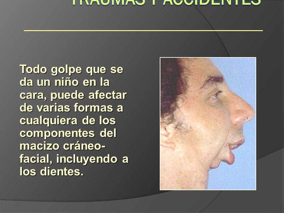 Todo golpe que se da un niño en la cara, puede afectar de varias formas a cualquiera de los componentes del macizo cráneo- facial, incluyendo a los di
