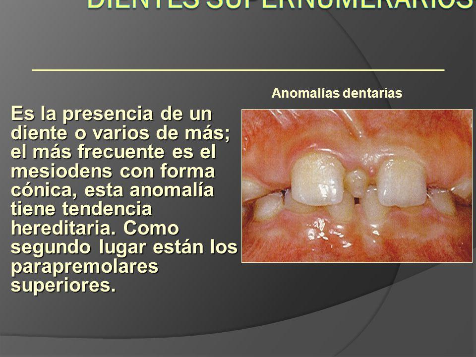 Anomalías dentarias Es la presencia de un diente o varios de más; el más frecuente es el mesiodens con forma cónica, esta anomalía tiene tendencia her