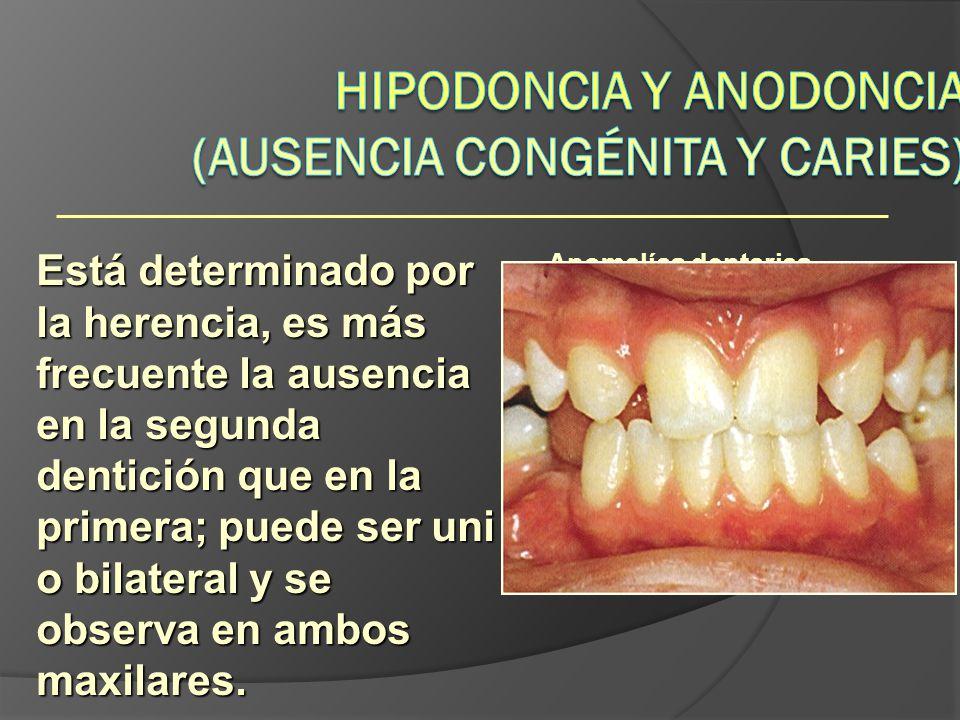 Anomalías dentarias Está determinado por la herencia, es más frecuente la ausencia en la segunda dentición que en la primera; puede ser uni o bilatera