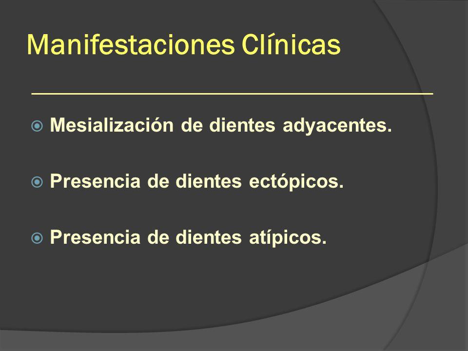Manifestaciones Clínicas Mesialización de dientes adyacentes. Presencia de dientes ectópicos. Presencia de dientes atípicos.