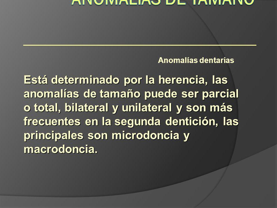 Anomalías dentarias Está determinado por la herencia, las anomalías de tamaño puede ser parcial o total, bilateral y unilateral y son más frecuentes e