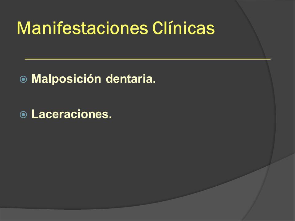 Manifestaciones Clínicas Malposición dentaria. Laceraciones.
