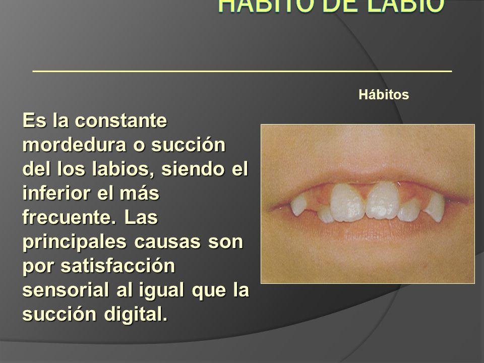 Hábitos Es la constante mordedura o succión del los labios, siendo el inferior el más frecuente. Las principales causas son por satisfacción sensorial