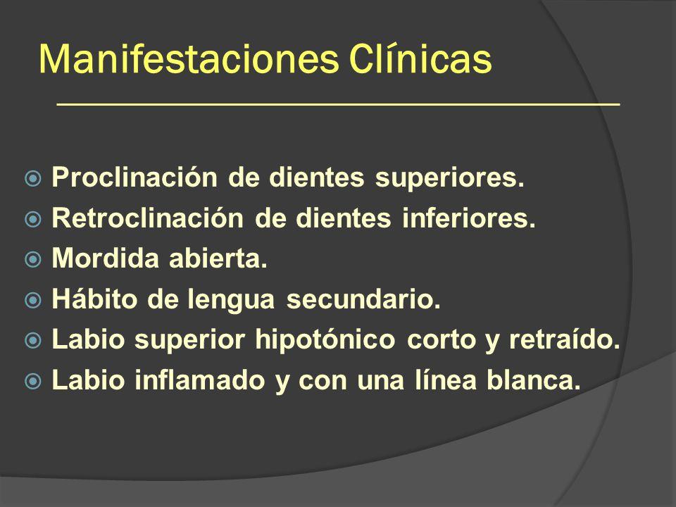 Manifestaciones Clínicas Proclinación de dientes superiores. Retroclinación de dientes inferiores. Mordida abierta. Hábito de lengua secundario. Labio