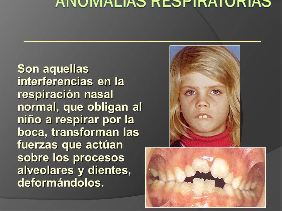 Hábitos Son aquellas interferencias en la respiración nasal normal, que obligan al niño a respirar por la boca, transforman las fuerzas que actúan sob