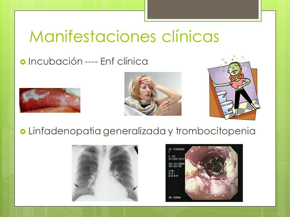 Manifestaciones clínicas Incubación ---- Enf clínica Linfadenopatia generalizada y trombocitopenia