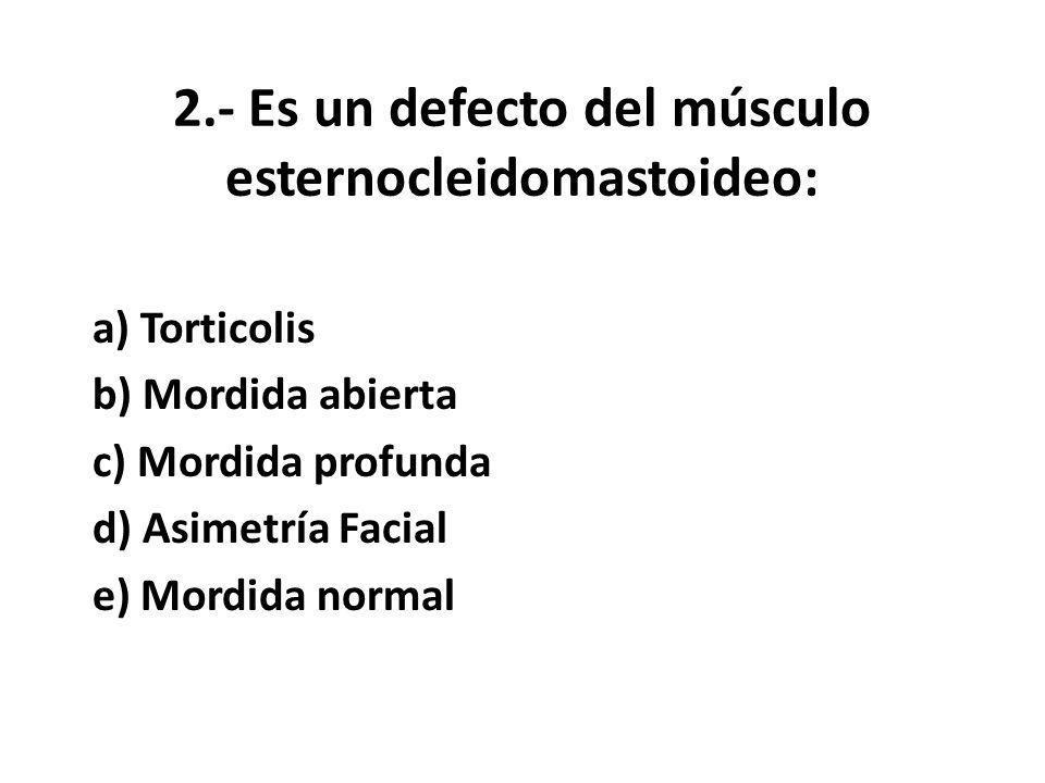 2.- Es un defecto del músculo esternocleidomastoideo: a) Torticolis b) Mordida abierta c) Mordida profunda d) Asimetría Facial e) Mordida normal