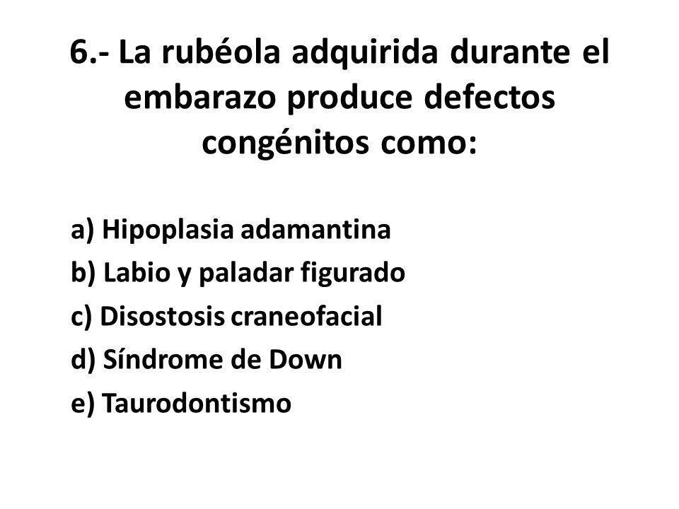 6.- La rubéola adquirida durante el embarazo produce defectos congénitos como: a) Hipoplasia adamantina b) Labio y paladar figurado c) Disostosis craneofacial d) Síndrome de Down e) Taurodontismo
