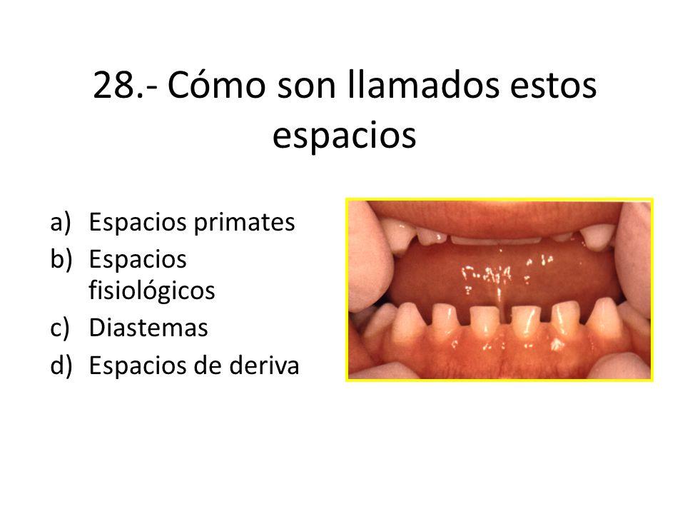 28.- Cómo son llamados estos espacios a)Espacios primates b)Espacios fisiológicos c)Diastemas d)Espacios de deriva