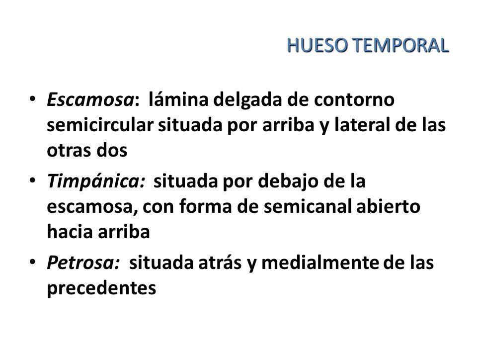 HUESO TEMPORAL Escamosa: lámina delgada de contorno semicircular situada por arriba y lateral de las otras dos Timpánica: situada por debajo de la esc