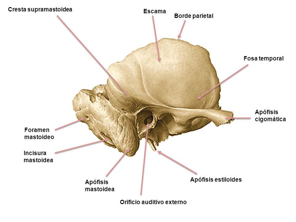 Escama Borde parietal Fosa temporal Apófisis cigomática Cresta supramastoidea Incisura mastoidea Foramen mastoideo Apófisis mastoidea Orificio auditiv